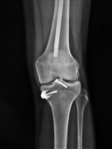 Invokana lawsuit ketoacidosis broken bones